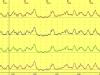 Acalasia esofágica clásica (no vigorosa)