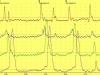 Peristalsis esofágica sintomática (esófago en cascanueces)