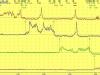 Estudio del esfínter esofágico inferior