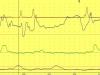 Estudio del esfínter esofágico superior y orofaringe