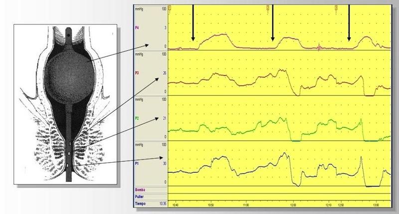 En esta gráfica se muestra el progreso de uno de nuestros pacientes: la primera maniobra defecatoria es claramente obstructiva, en la segunda ya existe una discreta realajación anal y en la tercera la maniobra ya es normal.