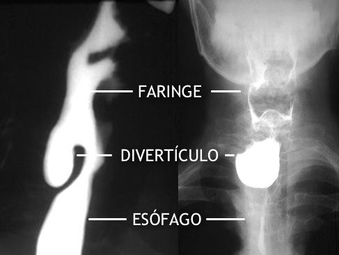 Imagen radiológica lateral y anteroposterior de un divertículo de Zencker.