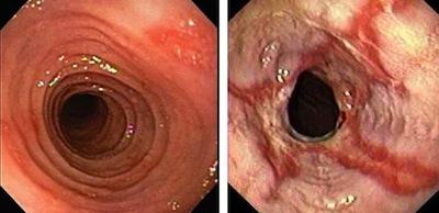 Esofagitis péptica y eosinofílica