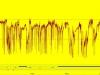 pHmetría Ambulatoria