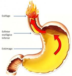 Reflujo gastroesofágico es el paso de contenido gástrico al esófago. Los síntomas típicos son ardor y regurgitación. También puede producir dolor y síntomas respiratorios.