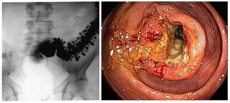 Izquierda: enema opaco con diverticulos. Derecha: colonoscopia con cáncer de colon