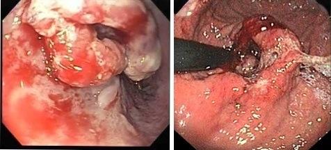 Pseudoacalasia por adenocarcinoma