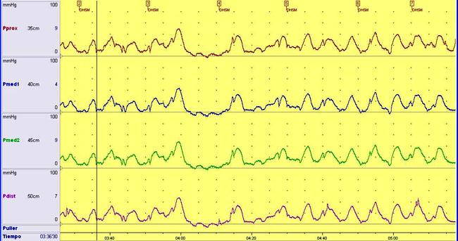 manometriaesofagica2